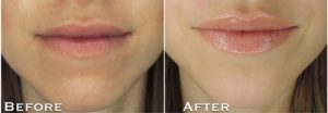 Preview GrandeLIPS Hydrating Lip Plumper new nude shades